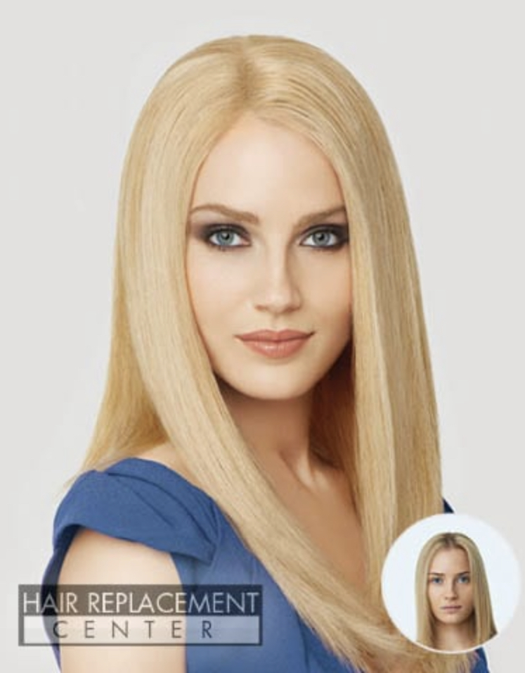 Women's Non-Surgical Hair Replacement Solutions from Hair Replacement Center of Iowa