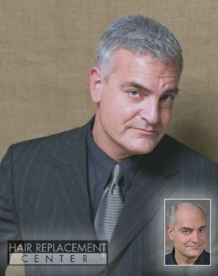 Men's Non-Surgical Hair Replacement Solutions from Hair Replacement Center of Iowa