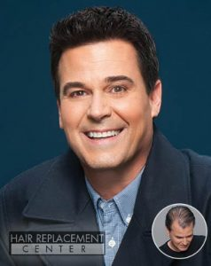 Men's Non-Surgical Hair Replacement from HRC of Iowa